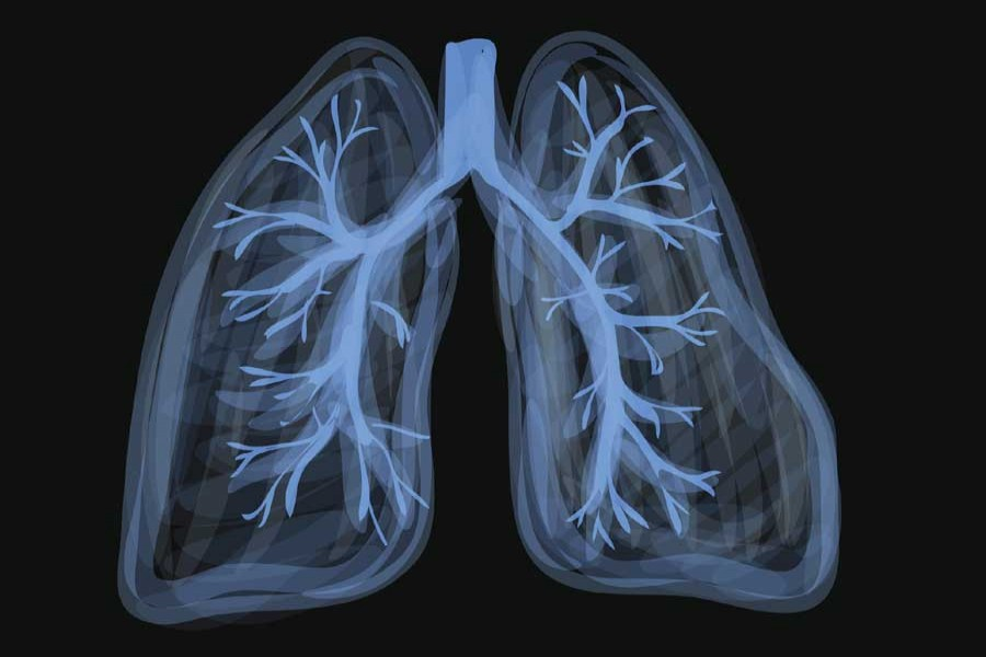 Scientists find fat in overweight people's lungs