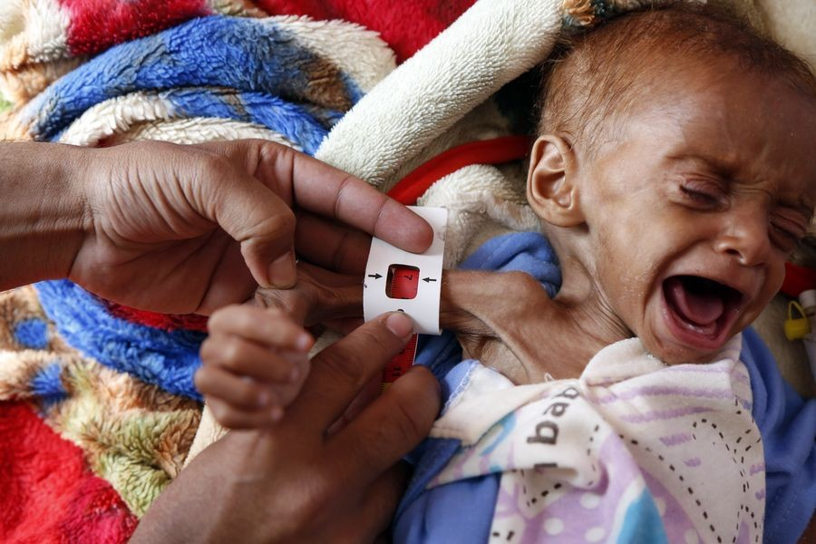 A doctor checks a malnourished child at the malnutrition treating department in Al-Sabeen hospital in Sanaa, Yemen, on Oct 17, 2019. (Xinhua/Mohammed Mohammed)