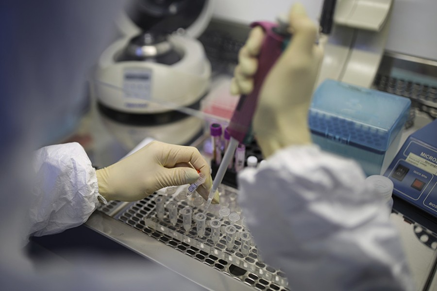 A medical staffer works with test systems for the diagnosis of coronavirus in Krasnodar, Russia — AP/Files