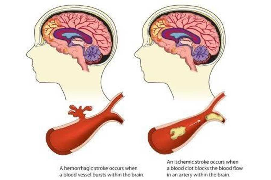 Treatment and prevention of stroke through awareness