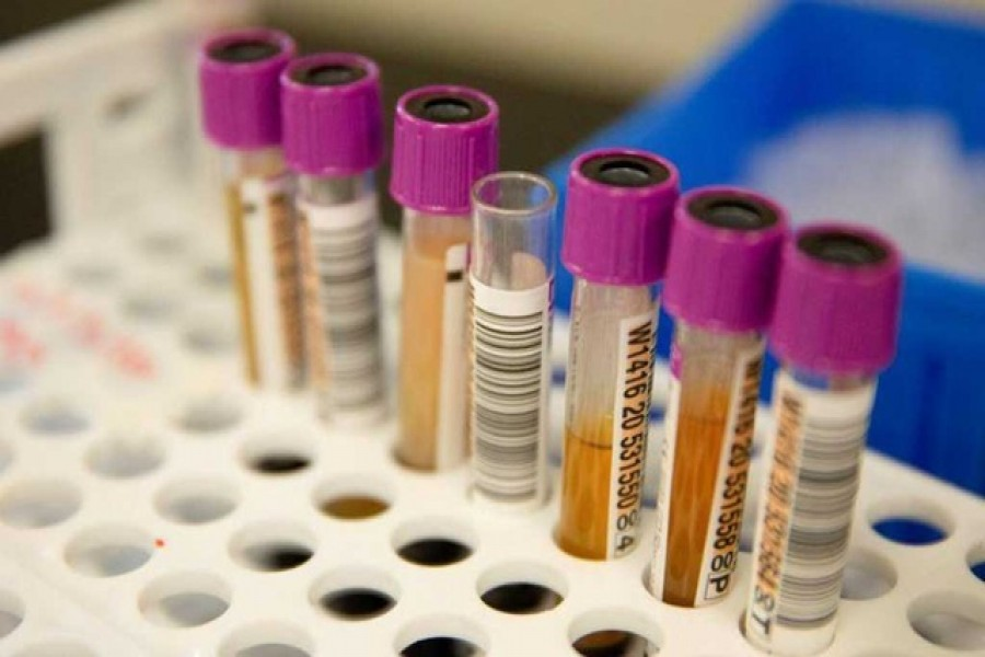 Convalescent plasma samples in vials are seen before being tested for COVID-19 antibodies at the Bloodworks Northwest Laboratory during the coronavirus disease (COVID-19) outbreak in Renton, Washington, US, Sept 9, 2020. REUTERS