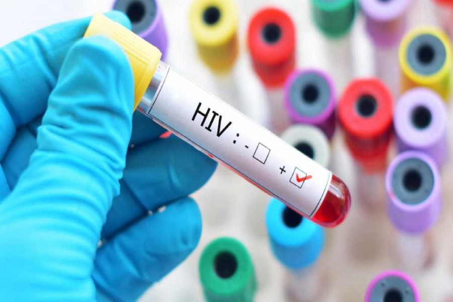 Dhaka witnesses highest concentration of HIV-positive people in Bangladesh